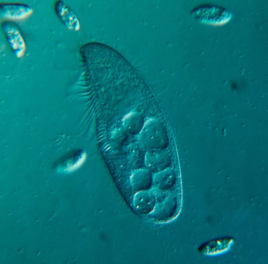 Фотография инфузории амебы